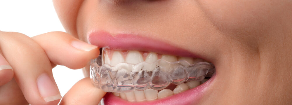invisalign treatment eagle mountain