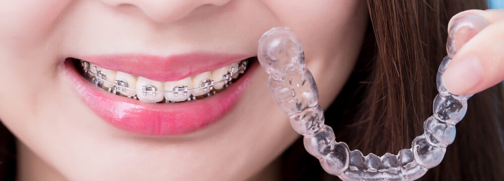 orthodontics treatment daybreak