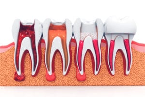 different stages of root canal